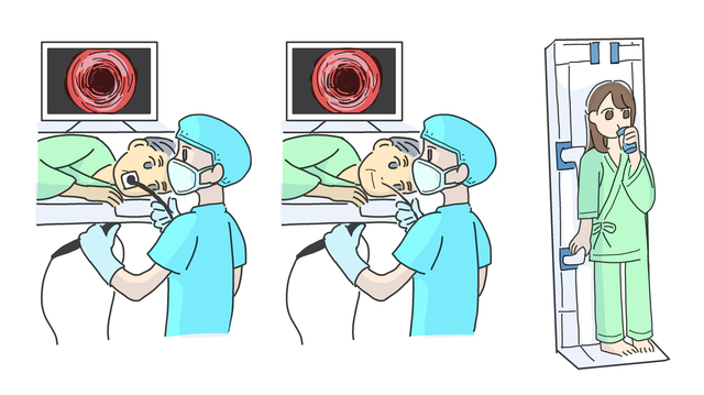 バリウムと内視鏡、受けるならどっち?消化器科医の9割が選んだのは