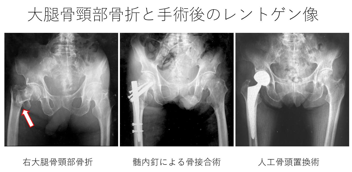 「健康寿命を大きく左右」コロナ禍、水面下で進む「骨」のリスク