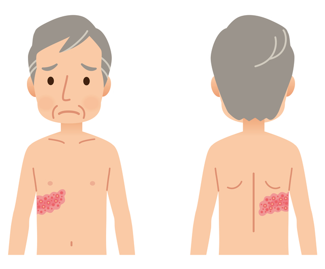 帯状疱疹の相談が急増、要因は
