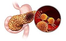膵臓がんは危険因子を排除することで予防する